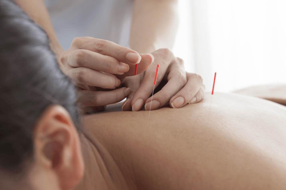 acupuncture-kiroclinique