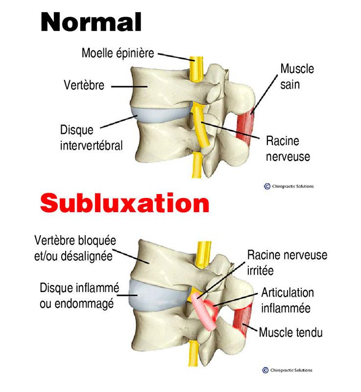 chiropraticien-subluxation